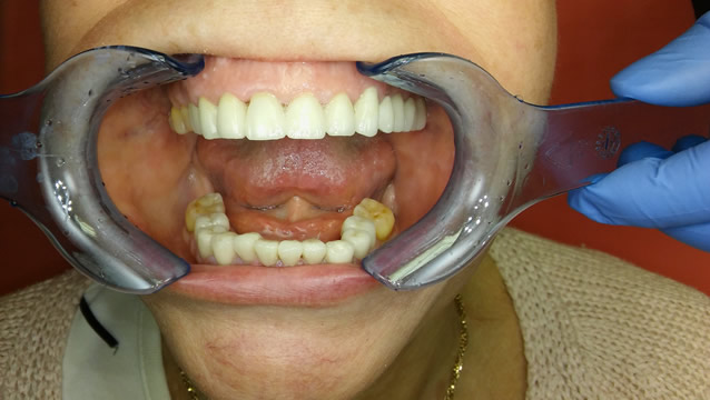 Dental Services in Hungary - Gallery